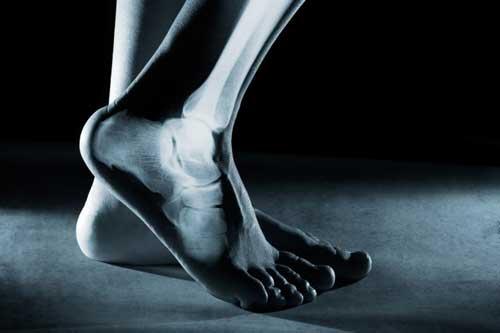 شایعترین عامل شکستگی استخوان چیست؟
