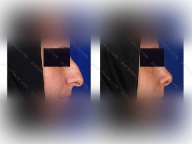 نمونه جراحی های بینی توسط دکتر پرندآور